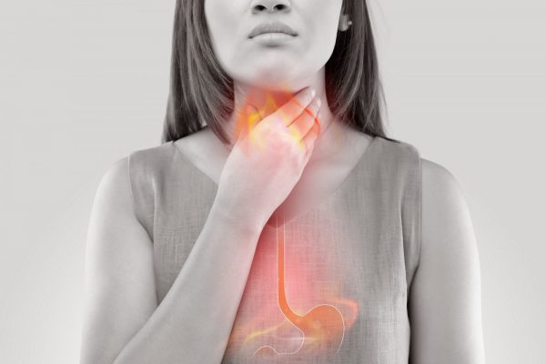 Acid Reflux, Heartburn, and GERD: What's the difference?