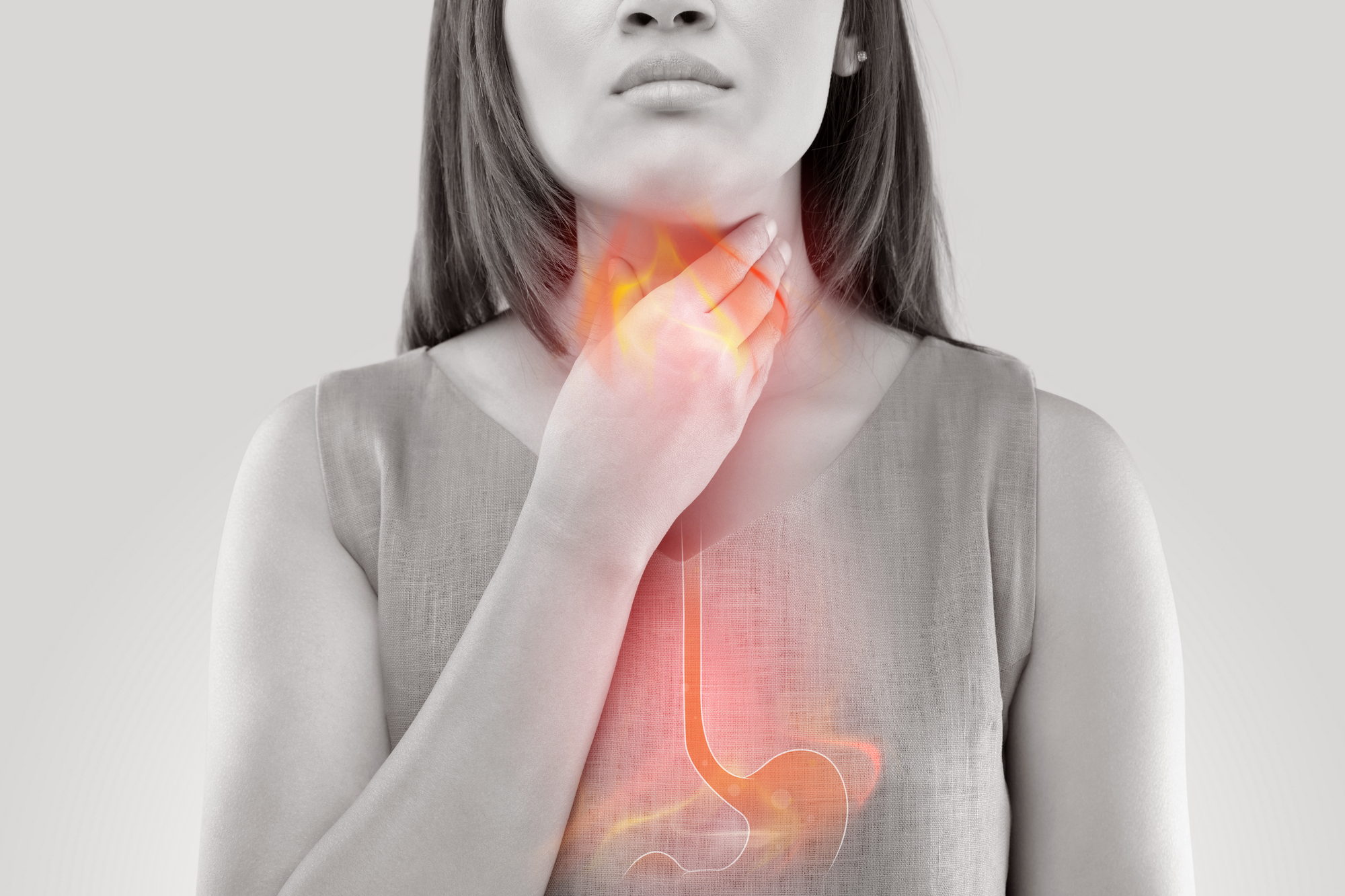 Acid reflux (or Gastroesophageal reflux disease - GERD) s a condition where acid flows from the stomach into the esophagus.